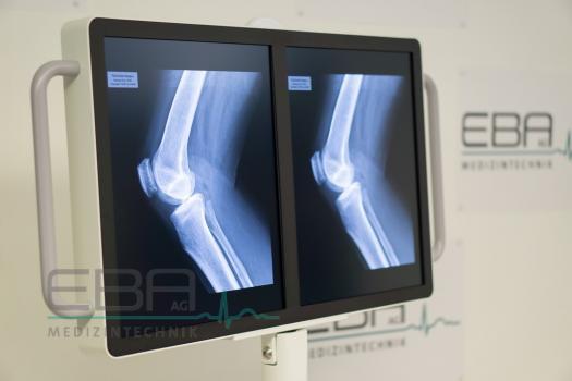 Fußboden Günstig Gebraucht ~ Eba ag neue und gebrauchte medizintechnik röntgen gebraucht